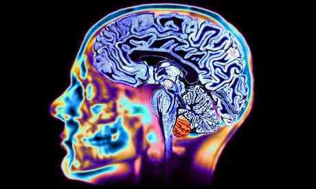 8-tips-brain-change